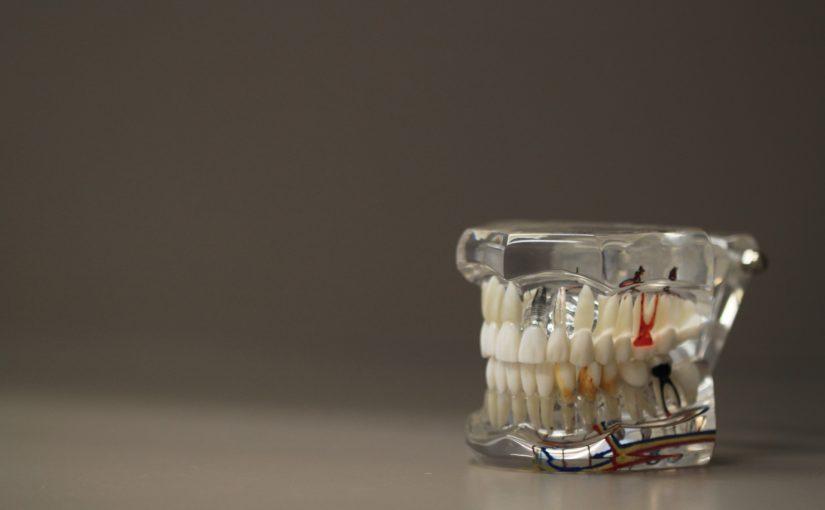 Zła dieta żywienia się to większe braki w zębach a dodatkowo ich brak